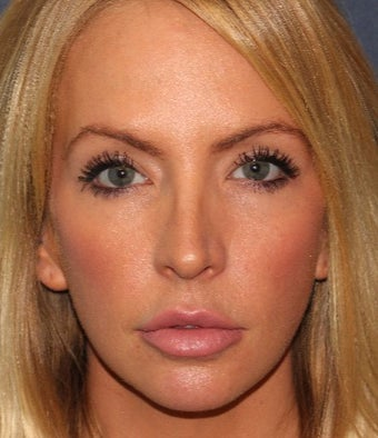 25-34 year old woman treated with Botox after 3623999