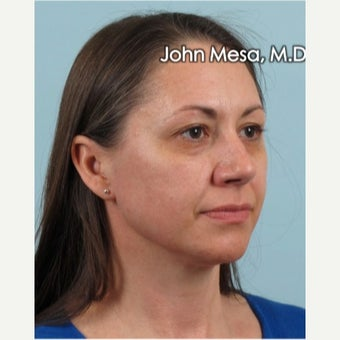 35-44 year old woman treated with Voluma for mid face augmentation before 2014436