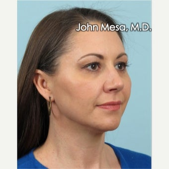 35-44 year old woman treated with Voluma for mid face augmentation after 2014436