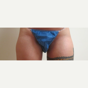 25-34 year old woman treated with Liposculpture after 3306114
