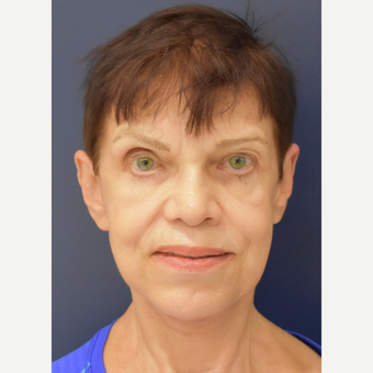 65-74 year old woman treated with Lower Face Lift after 3449053