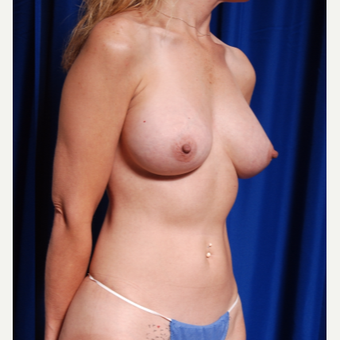 35-44 year old woman treated with Breast Fat Transfer and implants after 2854243
