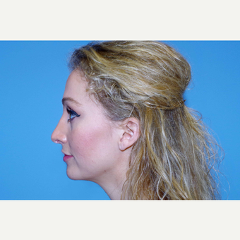 25-34 year old woman treated with Rhinoplasty after 2864128