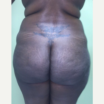 25-34 year old woman treated with Brazilian Butt Lift before 3022921