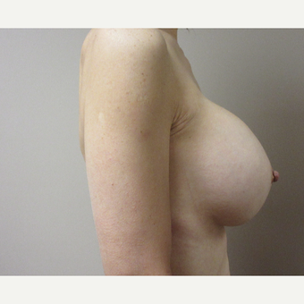 45-54 year old woman treated with Breast Augmentation after 3788974