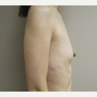 45-54 year old woman treated with Breast Augmentation before 3788974