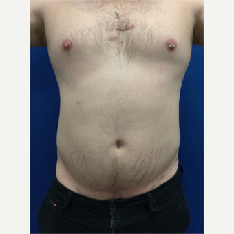 25-34 year old man treated with Laser Liposuction after 3416100