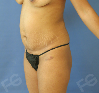 31 y/o female who used to have a great body, but pregnancy disrupted her aesthetic appearance 1472648