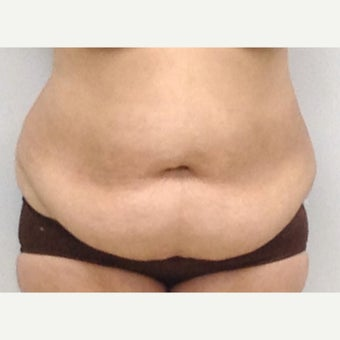 Tummy Tuck before 2386466