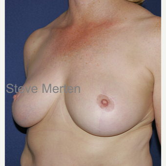 35-44 year old woman treated with Breast Reduction after 3472433