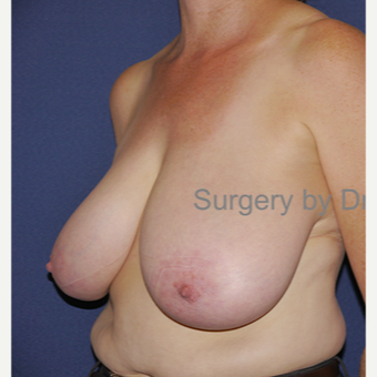 35-44 year old woman treated with Breast Reduction before 3472433
