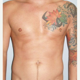 Man treated with Pec Implants