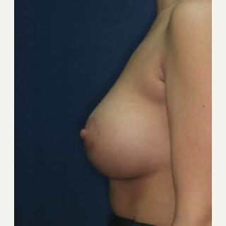25-34 year old woman treated with Breast Lift with Implants after 3520157