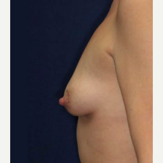 25-34 year old woman treated with Breast Lift with Implants before 3520157