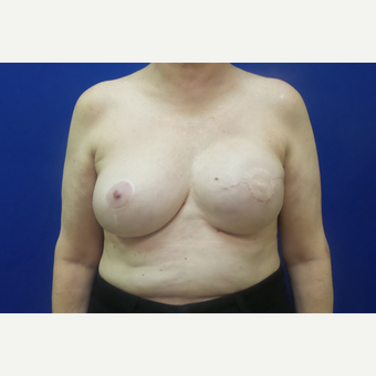 Breast Reconstruction Revision after 3644765