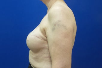 Breast Reconstruction Revision 3644765