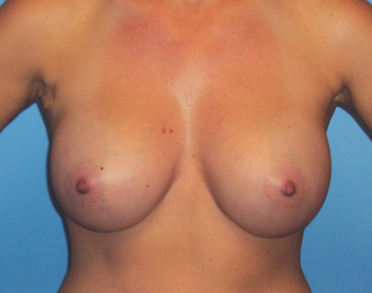 Inspira Breast Implants after 1515920