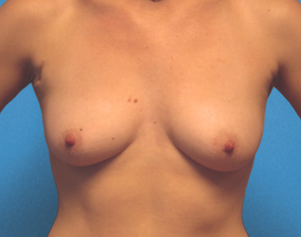 Inspira Breast Implants before 1515920