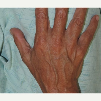 55-64 year old woman treated with Fat Transfer before 1738373
