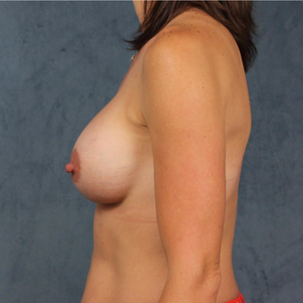 40 year old woman with post-pregnancy deflation undergoes natural silicone gel breast augmentation. after 3045159
