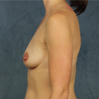 40 year old woman with post-pregnancy deflation undergoes natural silicone gel breast augmentation. before 3045159