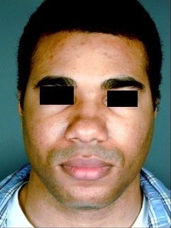 African American Male Rhinoplasty  before 958700