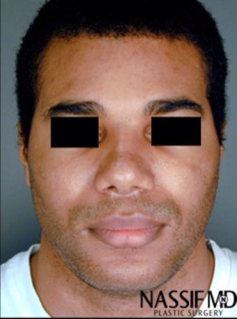 African American Male Rhinoplasty  after 958700