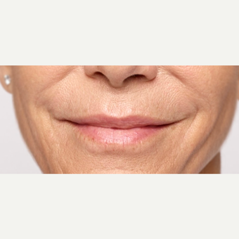 Woman treated with Restylane Silk after 1711074