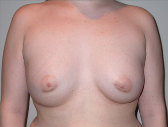 21 year old with severe tuberous breast deformity after 904677