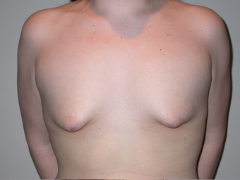 21 year old with severe tuberous breast deformity before 904677