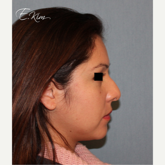 35-44 year old woman treated with Rhinoplasty before 3577991