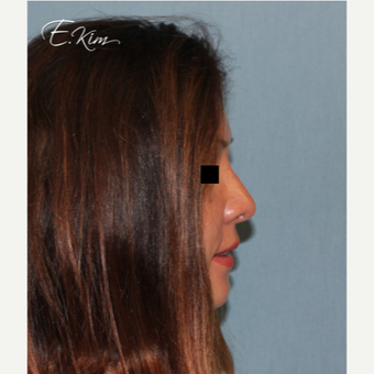 35-44 year old woman treated with Rhinoplasty after 3577991