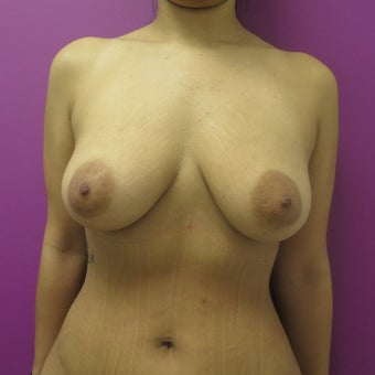 25-34 year old woman treated with Breast Lift before 1566628