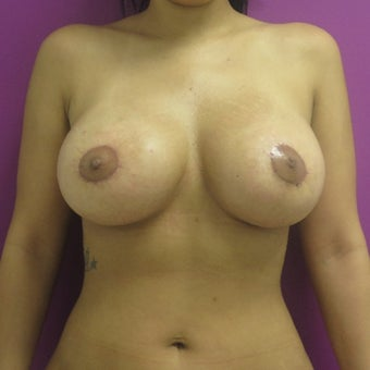 25-34 year old woman treated with Breast Lift after 1566628