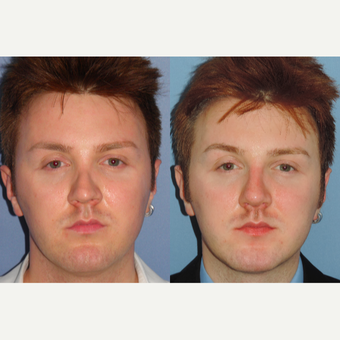 25-34 year old man treated with Revision Rhinoplasty before 3521829