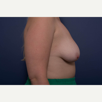 25-34 year old woman treated with Breast Lift with Implants before 3728893
