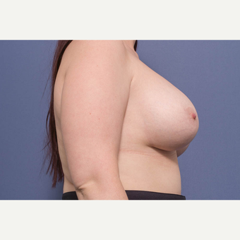 25-34 year old woman treated with Breast Lift with Implants after 3728893