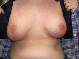 20 year old female with congenital constricted asymmetric breasts after 997663