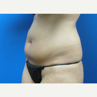 34 year old woman 5'2 treated with Tummy Tuck before 3059874