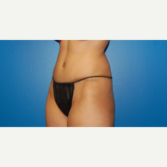 34 year old woman 5'2 treated with Tummy Tuck after 3059874