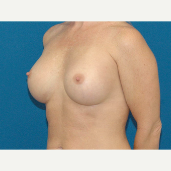 44 year old woman treated with Breast Augmentation after 3267168