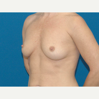 44 year old woman treated with Breast Augmentation before 3267168