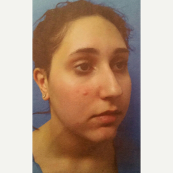18-24 year old woman treated with Rhinoplasty before 3687061