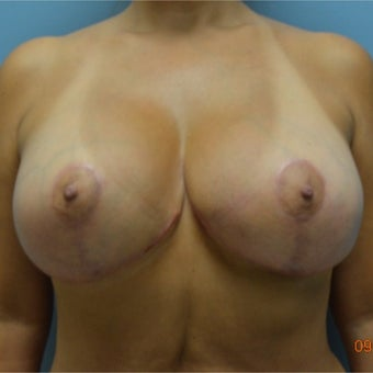 45-54 year old woman treated with Breast Implant Revision after 2634555