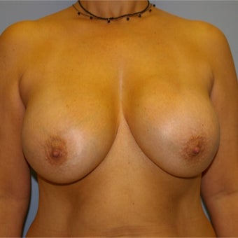 45-54 year old woman treated with Breast Implant Revision before 2634555