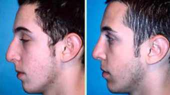 Young Male Receives Rhinoplasty to Correct Curved Bridge with Natural Results 1344018