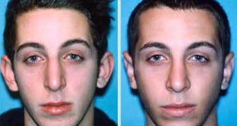 Young Male Receives Rhinoplasty to Correct Curved Bridge with Natural Results before 1344018