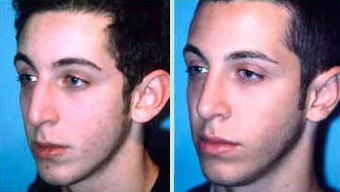Young Male Receives Rhinoplasty to Correct Curved Bridge with Natural Results after 1344018