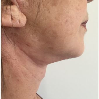65-74 year old woman treated with Neck Lift after 3265620