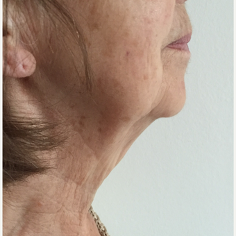 65-74 year old woman treated with Neck Lift before 3265620